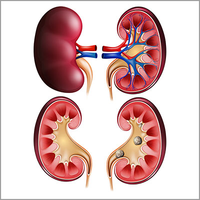 Doctor for removing kidney stones in chennai