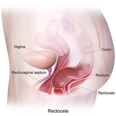 what are the causes of Rectocele