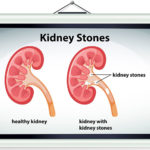 Types of Kidney stones – Type 1 – Calcium Oxalate Stones
