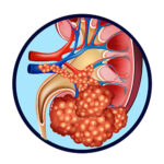 kidney-cancer-treatment-surgery-testing-chennai-specialist