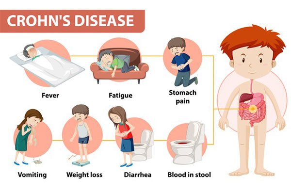 symptoms-of-crohns-disease-urogynecologist-treatment-chennai