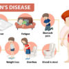symptoms-of-crohns-disease-urogynecologist-treatment-chennai